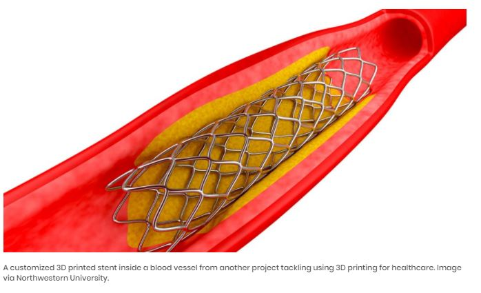 CARDIAC STENT RESEARCH PROJECT